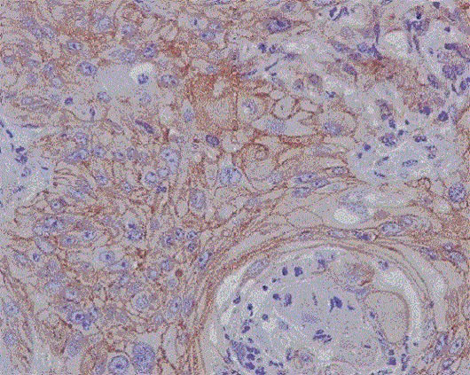 Immunohistochemistry (Formalin/PFA-fixed paraffin-embedded sections) - Anti-MMP1 antibody [EP1247Y] - Low endotoxin, Azide free (ab215979)