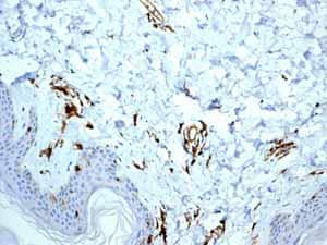 Immunohistochemistry (Formalin/PFA-fixed paraffin-embedded sections) - Anti-HLA-DR antibody [EPR3692] - Low endotoxin, Azide free (ab215985)