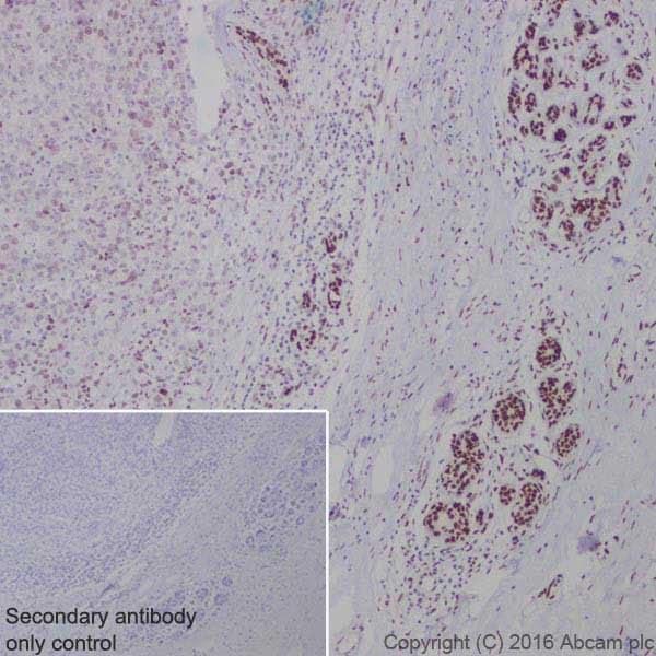 Immunohistochemistry (Formalin/PFA-fixed paraffin-embedded sections) - Anti-BRCA1 antibody [EPR19433] - BSA and Azide free (ab215988)