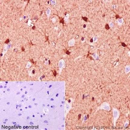 Immunohistochemistry (Formalin/PFA-fixed paraffin-embedded sections) - Anti-S100 beta antibody [EP1576Y] - BSA and Azide free (ab215989)