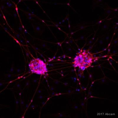 Immunocytochemistry/ Immunofluorescence - Anti-S100 beta antibody [EP1576Y] - BSA and Azide free (ab215989)