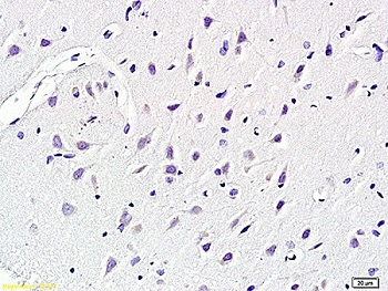 Immunohistochemistry (Formalin/PFA-fixed paraffin-embedded sections) - Anti-KCNN4 antibody (ab215990)