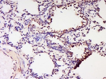Immunohistochemistry (Formalin/PFA-fixed paraffin-embedded sections) - Anti-CBLB antibody (ab215991)