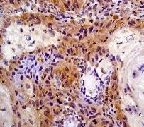 Immunohistochemistry (Formalin/PFA-fixed paraffin-embedded sections) - Anti-STAT6 antibody [YE361] - BSA and Azide free (ab215995)
