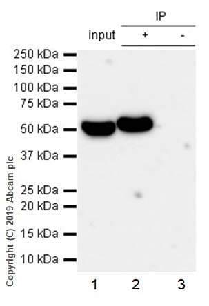 Immunoprecipitation - Anti-ALDH1A1 antibody [EP1933Y] - BSA and Azide free (ab215996)