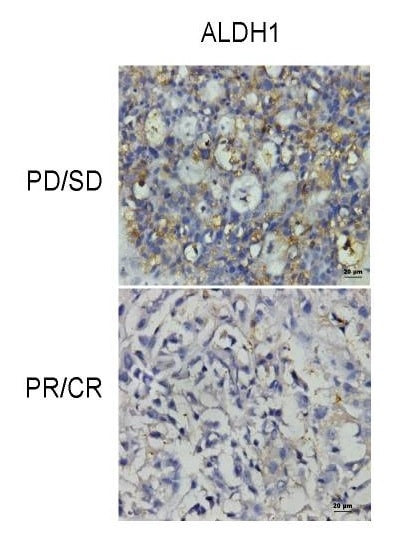 Immunohistochemistry (Formalin/PFA-fixed paraffin-embedded sections) - Anti-ALDH1A1 antibody [EP1933Y] - BSA and Azide free (ab215996)