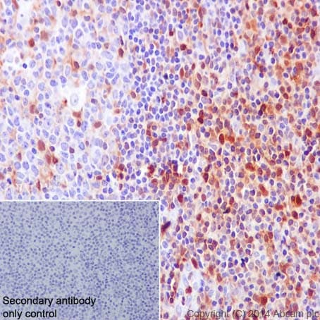Immunohistochemistry (Formalin/PFA-fixed paraffin-embedded sections) - Anti-S100A4 antibody [EPR2761(2)] - BSA and Azide free (ab216003)