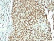 Immunohistochemistry (Formalin/PFA-fixed paraffin-embedded sections) - Anti-Nucleolin antibody [NCL/902] - BSA and Azide free (ab216006)
