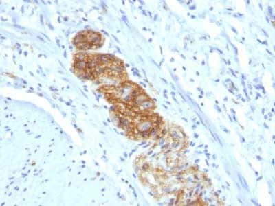 Immunohistochemistry (Formalin/PFA-fixed paraffin-embedded sections) - Anti-NCAM antibody [NCAM1/784] (ab216019)