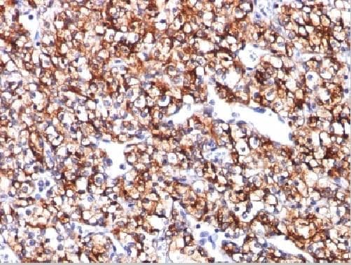 Immunohistochemistry (Formalin/PFA-fixed paraffin-embedded sections) - Anti-Carbonic Anhydrase 9/CA9 antibody [CA9/781] (ab216021)