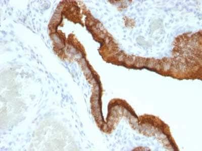 Immunohistochemistry (Formalin/PFA-fixed paraffin-embedded sections) - Anti-MUC1 antibody [HMPV] (ab216036)