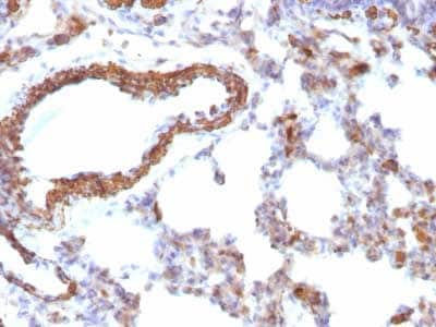 Immunohistochemistry (Formalin/PFA-fixed paraffin-embedded sections) - Anti-muscle Actin antibody [MSA/953] (ab216039)
