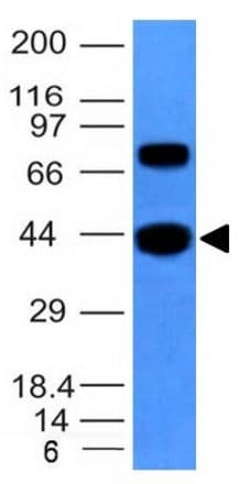 Western blot - Anti-muscle Actin antibody [MSA/953] (ab216039)