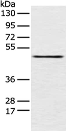 Western blot - Anti-PCID2 antibody (ab216042)