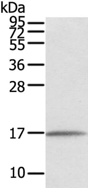 Western blot - Anti-TMEM166 antibody (ab216043)