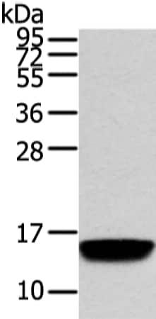 Western blot - Anti-VAMP5 antibody (ab216044)