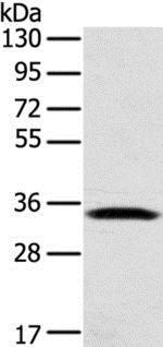 Western blot - Anti-STX11 antibody (ab216046)