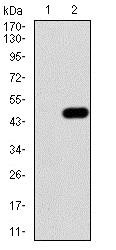 Western blot - Anti-IRAKM antibody [5C3D6] - C-terminal (ab216132)