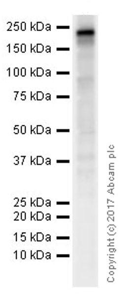 Western blot - Anti-Nephrin antibody [EPR20993] (ab216341)