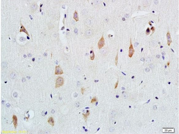 Immunohistochemistry (Formalin/PFA-fixed paraffin-embedded sections) - Anti-NGF antibody (ab216419)