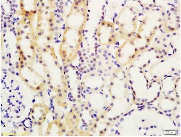 Immunohistochemistry (Formalin/PFA-fixed paraffin-embedded sections) - Anti-MADH7/SMAD7 antibody (ab216428)