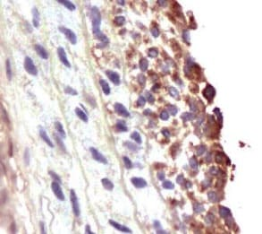 Immunohistochemistry (Formalin/PFA-fixed paraffin-embedded sections) - Anti-MMP2 antibody (ab216433)