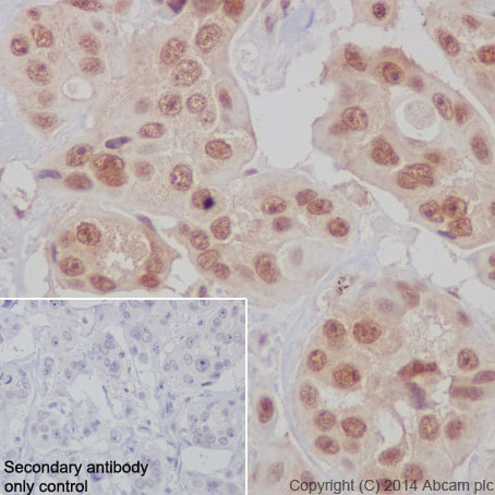 Immunohistochemistry (Formalin/PFA-fixed paraffin-embedded sections) - Anti-Bmi1 antibody [EPR3745(2)] - BSA and Azide free (ab216444)