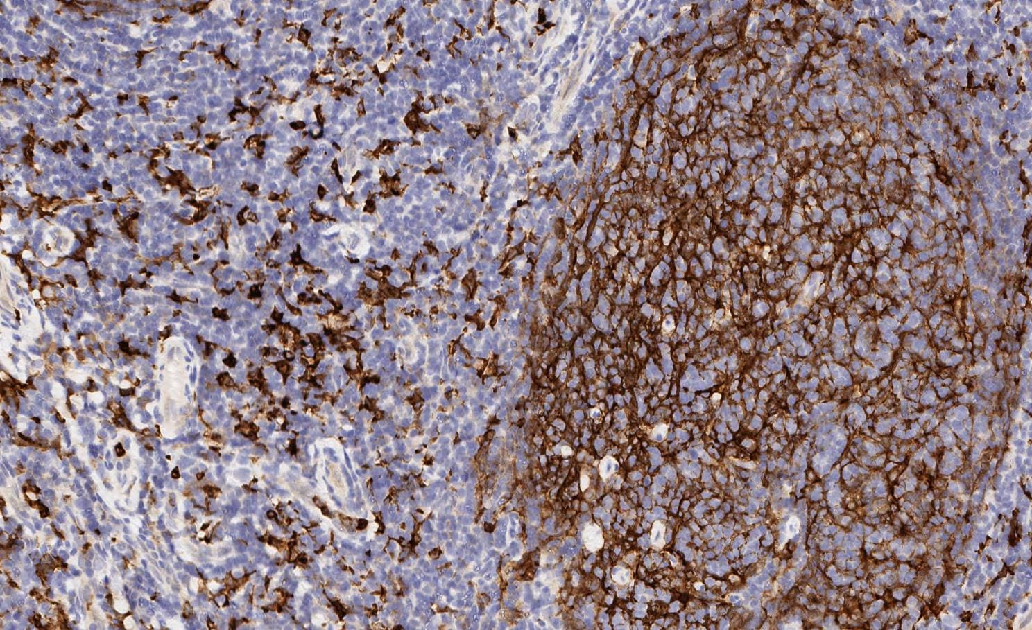 Immunohistochemistry (Formalin/PFA-fixed paraffin-embedded sections) - Anti-CD11b antibody [EPR1344] - Low endotoxin, Azide free (ab216445)
