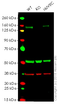 Western blot - Anti-c-Kit antibody [YR145] - BSA and Azide free (ab216450)