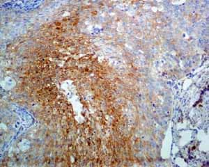 Immunohistochemistry (Formalin/PFA-fixed paraffin-embedded sections) - Anti-NDRG1 antibody [EPR5593] - Low endotoxin, Azide free (ab216457)