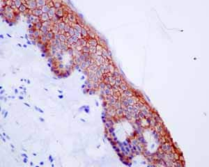 Immunohistochemistry (Formalin/PFA-fixed paraffin-embedded sections) - Anti-Syndecan-1 antibody [EPR6454] - Low endotoxin, Azide free (ab216458)