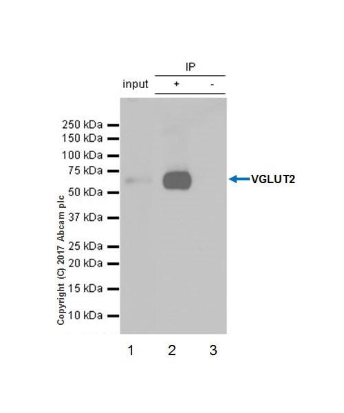 Immunoprecipitation - Anti-VGLUT2 antibody [EPR21085] (ab216463)