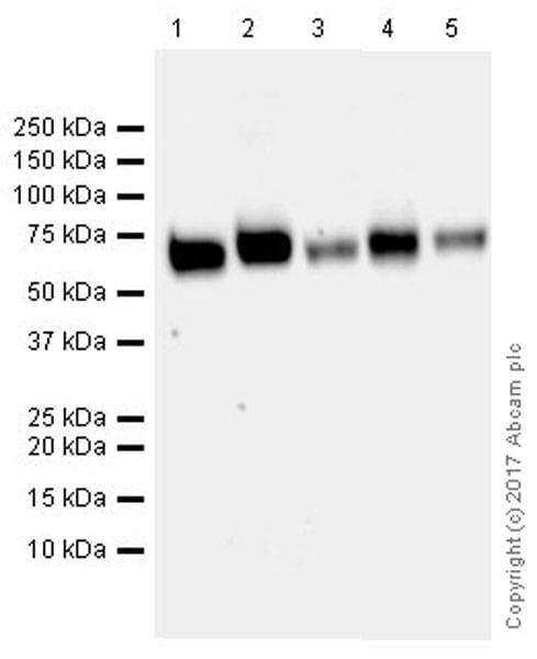 Western blot - Anti-VGLUT2 antibody [EPR21085] (ab216463)