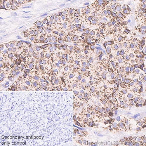 Immunohistochemistry (Formalin/PFA-fixed paraffin-embedded sections) - Anti-ABAT/GABA-T antibody [EPR20842] (ab216465)