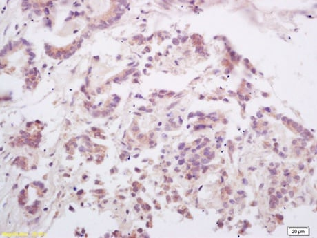 Immunohistochemistry (Formalin/PFA-fixed paraffin-embedded sections) - Anti-RANKL antibody (ab216484)