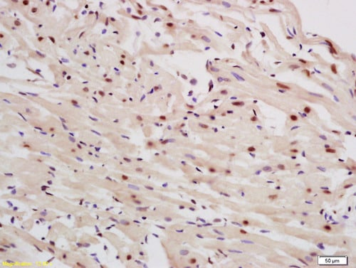 Immunohistochemistry (Formalin/PFA-fixed paraffin-embedded sections) - Anti-p63 antibody (ab216493)