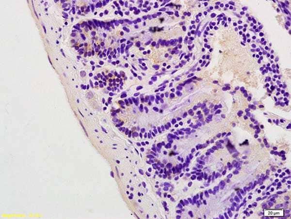 Immunohistochemistry (Formalin/PFA-fixed paraffin-embedded sections) - Anti-Lipin 1 antibody (ab216496)
