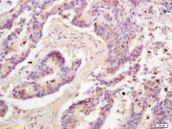 Immunohistochemistry (Formalin/PFA-fixed paraffin-embedded sections) - Anti-Adiponectin antibody (ab216502)