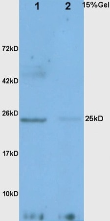 Western blot - Anti-Adiponectin antibody (ab216502)