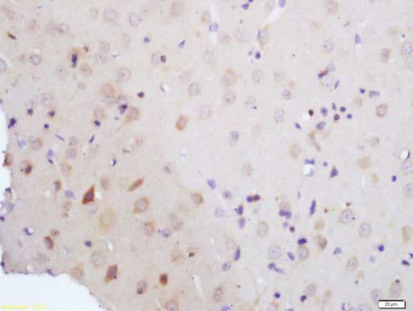 Immunohistochemistry (Formalin/PFA-fixed paraffin-embedded sections) - Anti-Vitamin D Receptor antibody (ab216514)