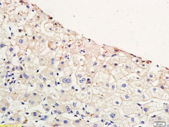 Immunohistochemistry (Formalin/PFA-fixed paraffin-embedded sections) - Anti-CCR4 antibody (ab216560)