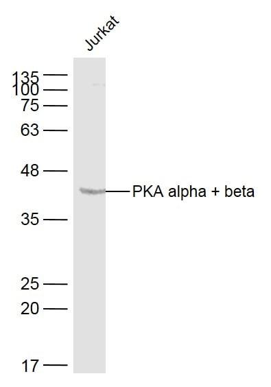 Western blot - Anti-PKA alpha + beta (catalytic subunits) antibody (ab216572)