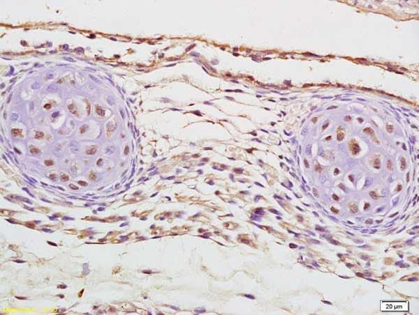 Immunohistochemistry (Formalin/PFA-fixed paraffin-embedded sections) - Anti-Cux2 antibody (ab216588)