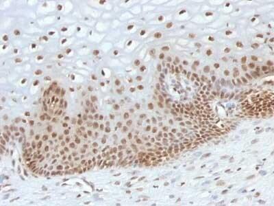 Immunohistochemistry (Formalin/PFA-fixed paraffin-embedded sections) - Anti-TOX3 antibody [TOX3/1123] (ab216614)