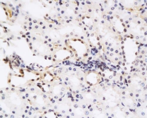 Immunohistochemistry (Formalin/PFA-fixed paraffin-embedded sections) - Anti-HGF antibody (ab216623)