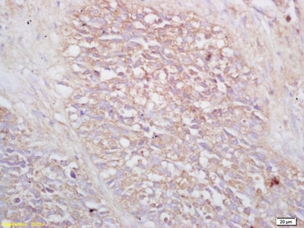 Immunohistochemistry (Formalin/PFA-fixed paraffin-embedded sections) - Anti-VPAC2 antibody (ab216630)