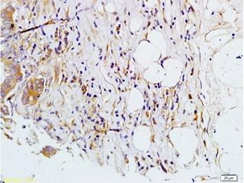 Immunohistochemistry (Formalin/PFA-fixed paraffin-embedded sections) - Anti-MMP7 antibody (ab216631)