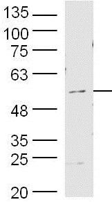Western blot - Anti-MMP19 antibody (ab216633)