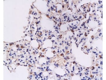 Immunohistochemistry (Formalin/PFA-fixed paraffin-embedded sections) - Anti-Interferon gamma antibody (ab216642)
