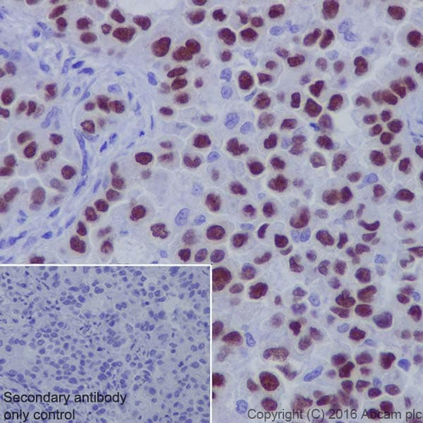 Immunohistochemistry (Formalin/PFA-fixed paraffin-embedded sections) - Anti-TTF1 antibody [EP1584Y] - BSA and Azide free (ab216648)